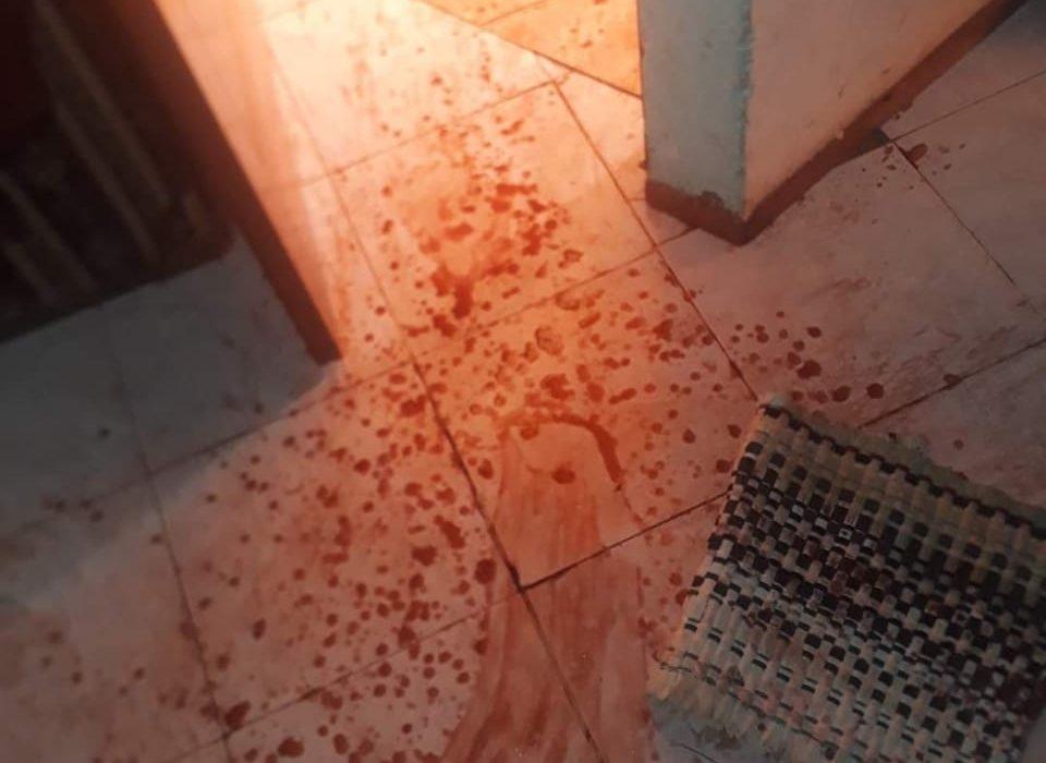 Su ex pareja intentó matarla, ella escapó saltando las rejas de su casa